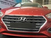 Bán xe Hyundai Accent 1.4 ATH 2018 giá 550 Triệu - TP HCM